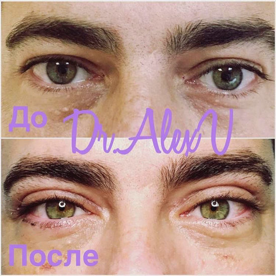 beautyclinic_results_blefaroplastika_verhnee_01