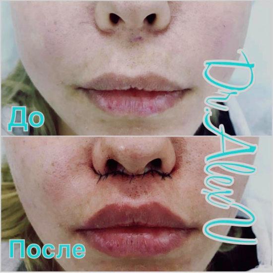 beautyclinic_results_bullhorn_01