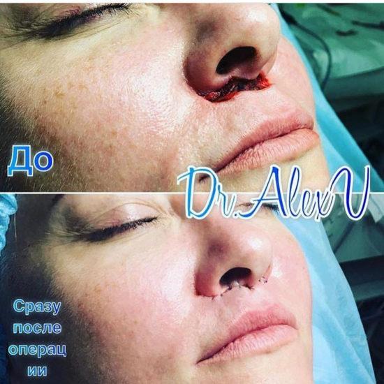 beautyclinic_results_bullhorn_02