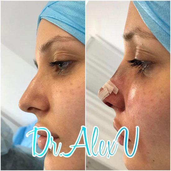 beautyclinic_results_rinoplastika_01
