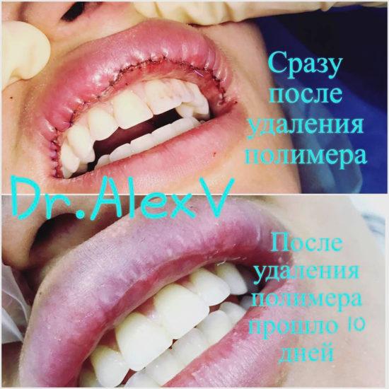 beautyclinic_results_udalenie_biopolimera_01