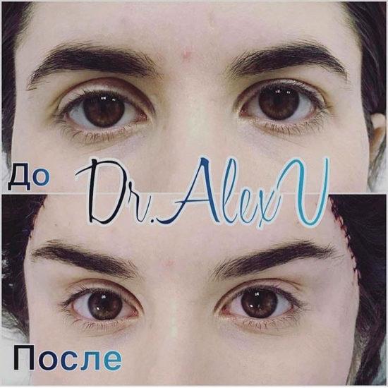 beautyclinic_results_visochnyi_lifting_01