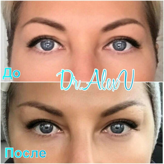 beautyclinic_results_visochnyi_lifting_02