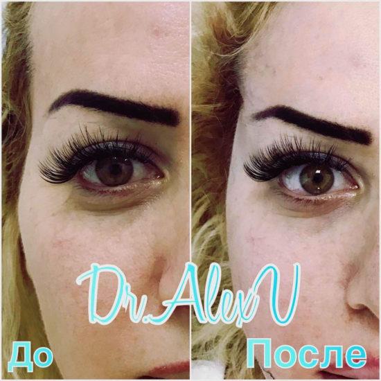 beautyclinic_results_visochnyi_lifting_03