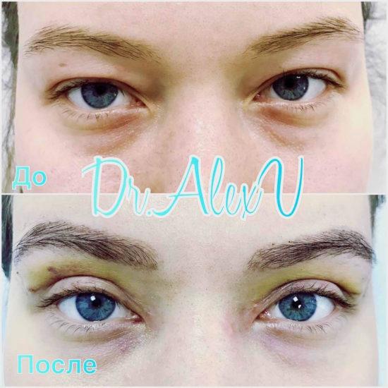 beautyclinic_results_blefaroplastika_nizhnee_01