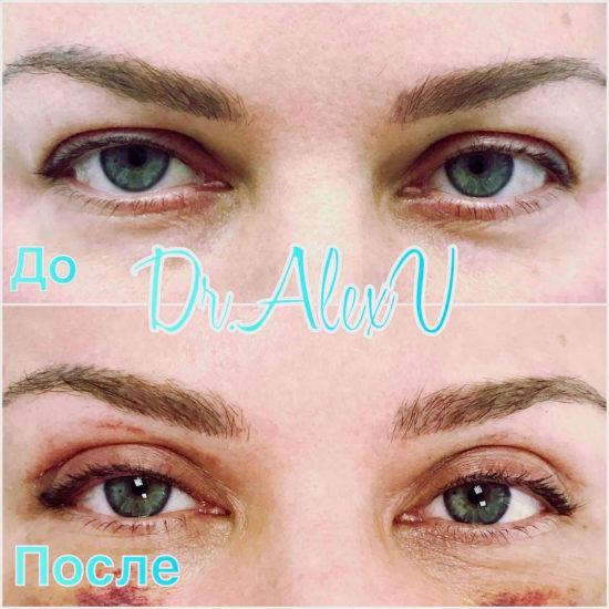 beautyclinic_results_blefaroplastika_nizhnee_02