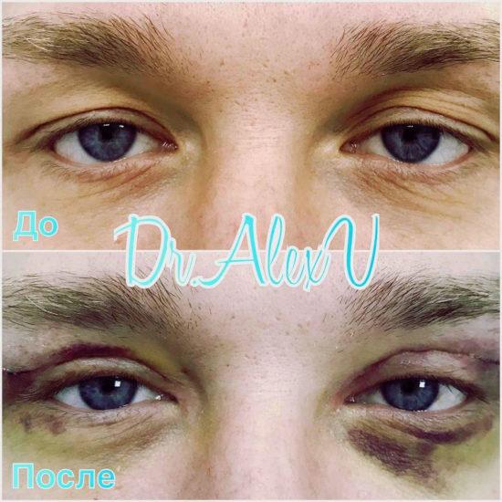 beautyclinic_results_blefaroplastika_nizhnee_03