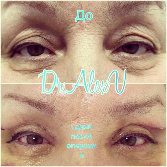 beautyclinic_results_blefaroplastika_nizhnee_04